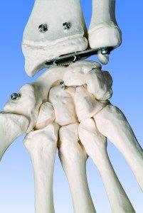 Detail Handknochen Lernskelett